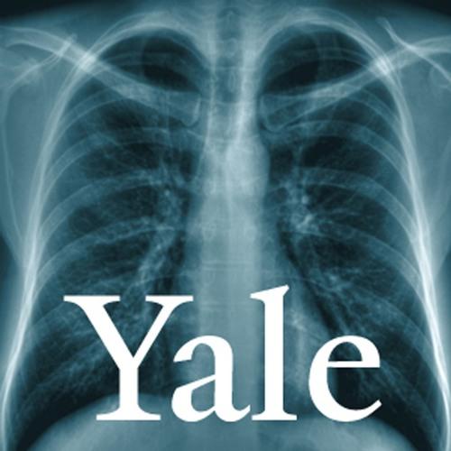 Yale Emergency Medicine Podcasts