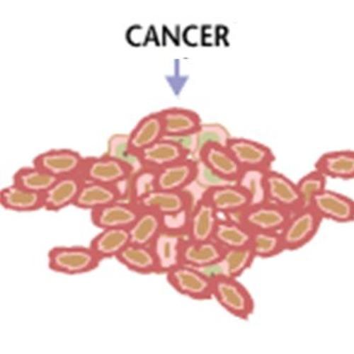 Episode 796 -  Fighting Back Against Cancer
