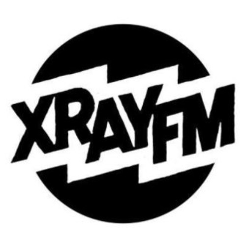 XRAY In The Morning - August 16th, 2017