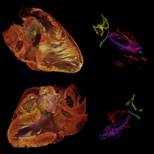 Imaging the Heart's Power