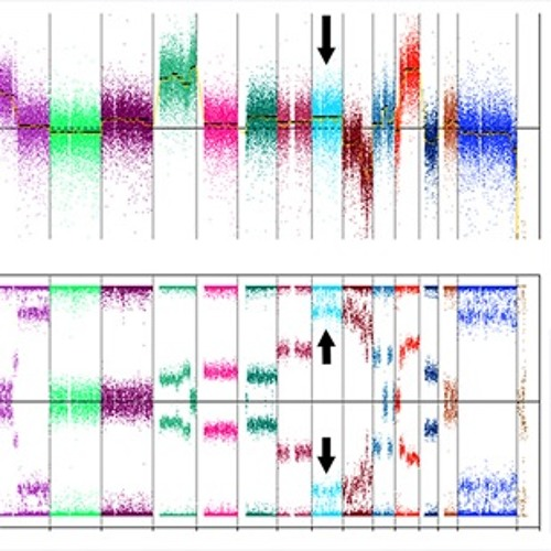Hechtman - Recurrent, truncating SOX9 mutations are associated with SOX9 overexpression, KRAS mut...