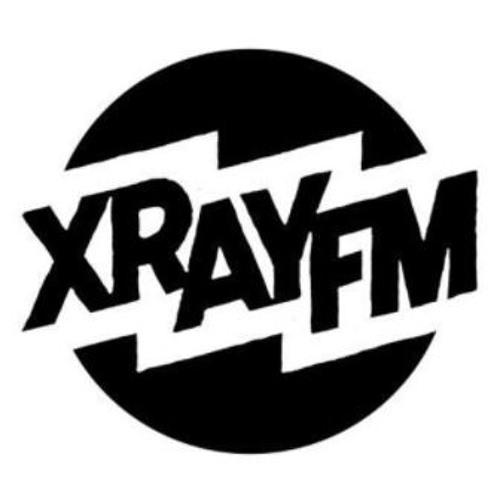 November 13, 2017 - XRAY in the Morning
