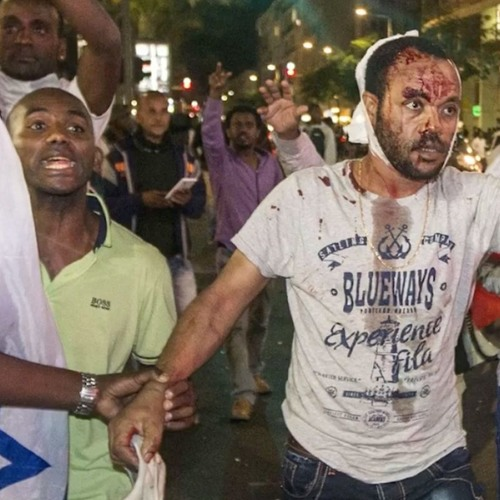 Episode 45 - How Black Lives Don't Matter in Israel