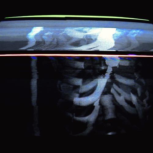 Bones - CARCASS (СКЕЛЕТ)