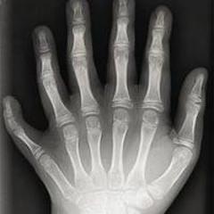 inumanosvsrobertocarlos - polegares estão surdos by joão brasil