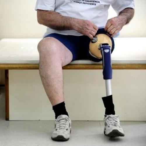 Uso de FGTS para prótese