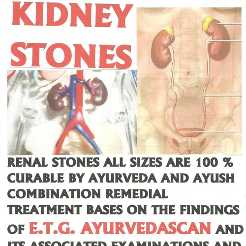 RENAL STONES ; KIDNEY STONES ; TOTAL CURE BY AYURVEDA & AYUSH TREATMENT