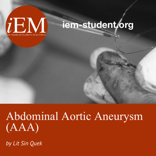 Abdominal Aortic Aneurysm (AAA) By Lit Sin Quek