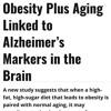 Dementia Intervention.mp3