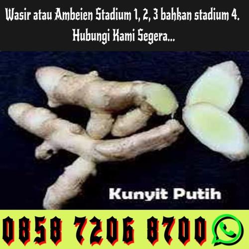 Obat Herbal Wasir Stadium 4