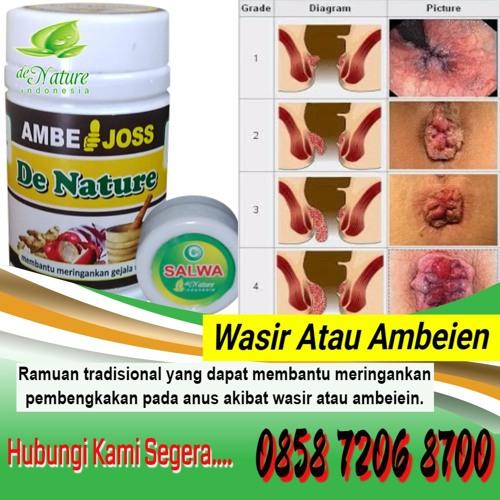 Obat Herbal Wasir Akut