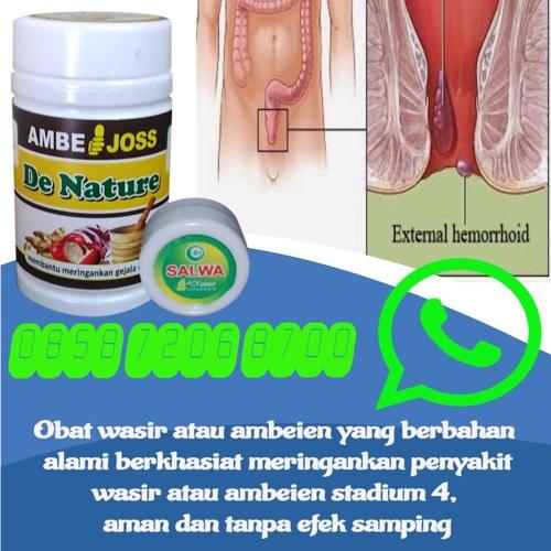 Obat Herbal Wasir Buat Ibu Hamil