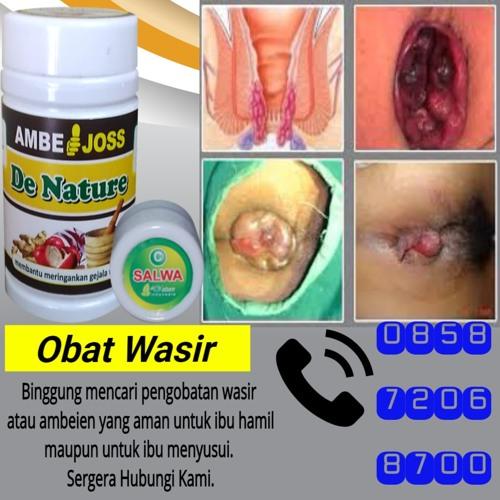 Obat Herbal Wasir Internal