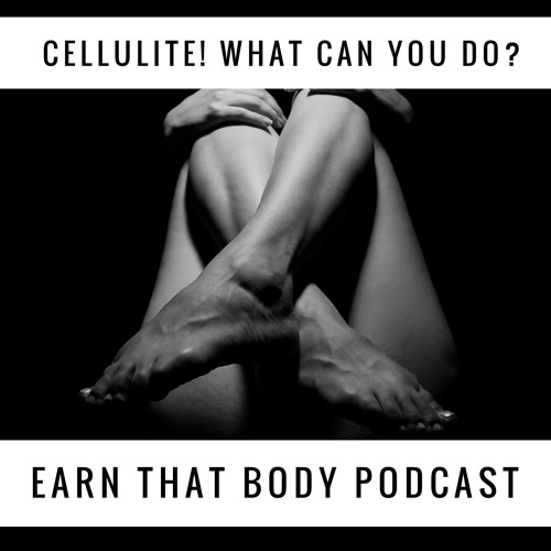 #107 Cellulite! What Can You Do?