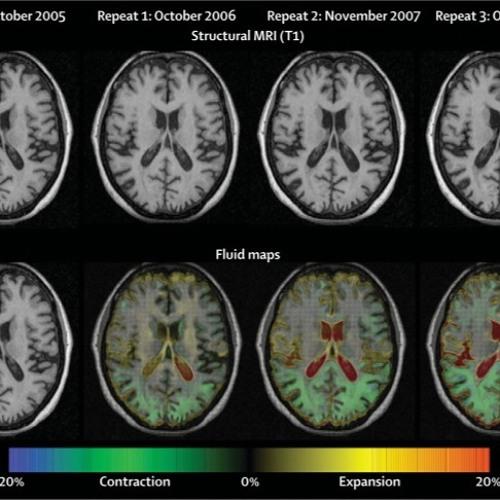 neural (dis)torsion