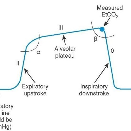 Do You Need to Check that Tube? Capnography