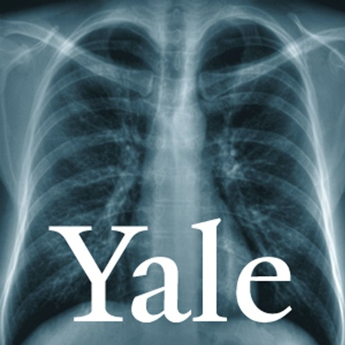Yale Health's Patient & Family Council: One Member's Experience