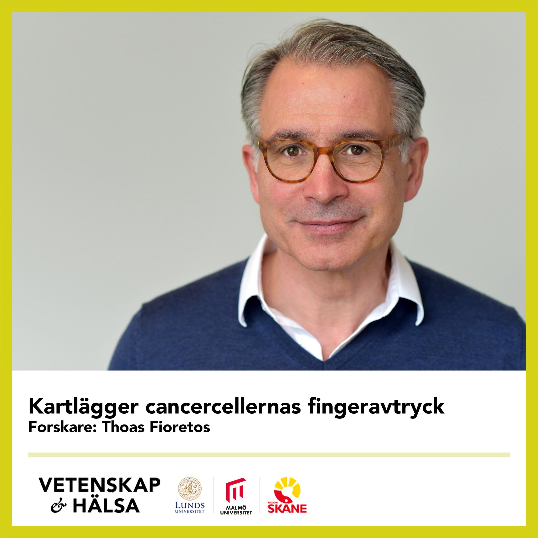Kartlägger cancercellernas fingeravtryck