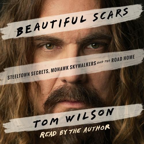 Beautiful Scars - Tom Wilson