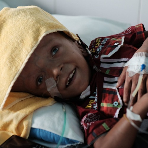 Radio interview about Omar Faisal, a Rohingya refugee boy with untreated hydrocephalus