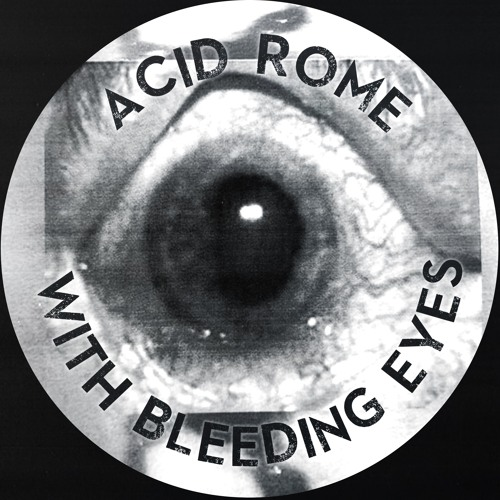 Acid Rome - With Bleeding Eyes by No Pizza Rave on SoundCloud - Hear the  world's sounds