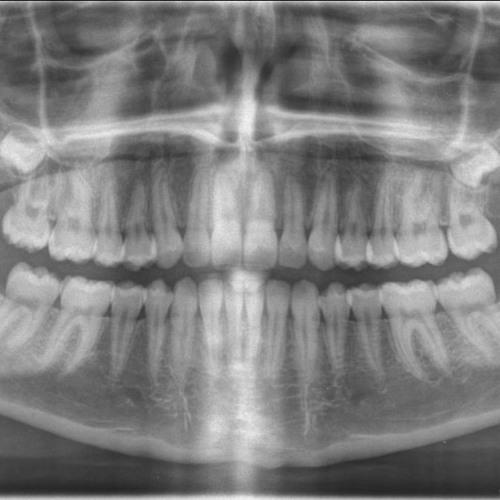 385 - Croquer la science à pleine dents