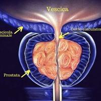 Cover mp3 Prostata: senso biologico e disturbi