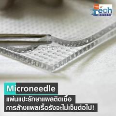 จิ๋วแต่แจ๋ว! Microneedle แผ่นแปะรักษาแผลติดเชื้อ    TNN Tech Reports