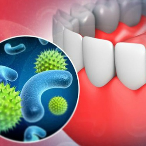 Dental Hygiene Frequency   Eliminate Harmful Bacteria in Mouth & Prevent Cavities
