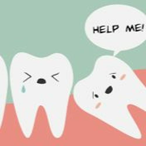 Remove Wisdom Tooth | Wisdom Dental Emergency