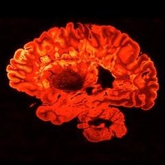 Ep. 56: Understanding a Terrorist's Brain