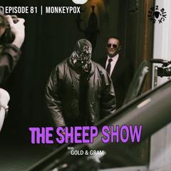 2BLVCKSHEEP's The Sheep Show - Monkeypox (Ep. 81)
