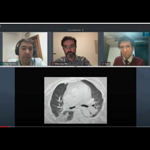Aspectos histológicos da COVID-19 - Correlação radiológica com autópsia minimamente invasiva