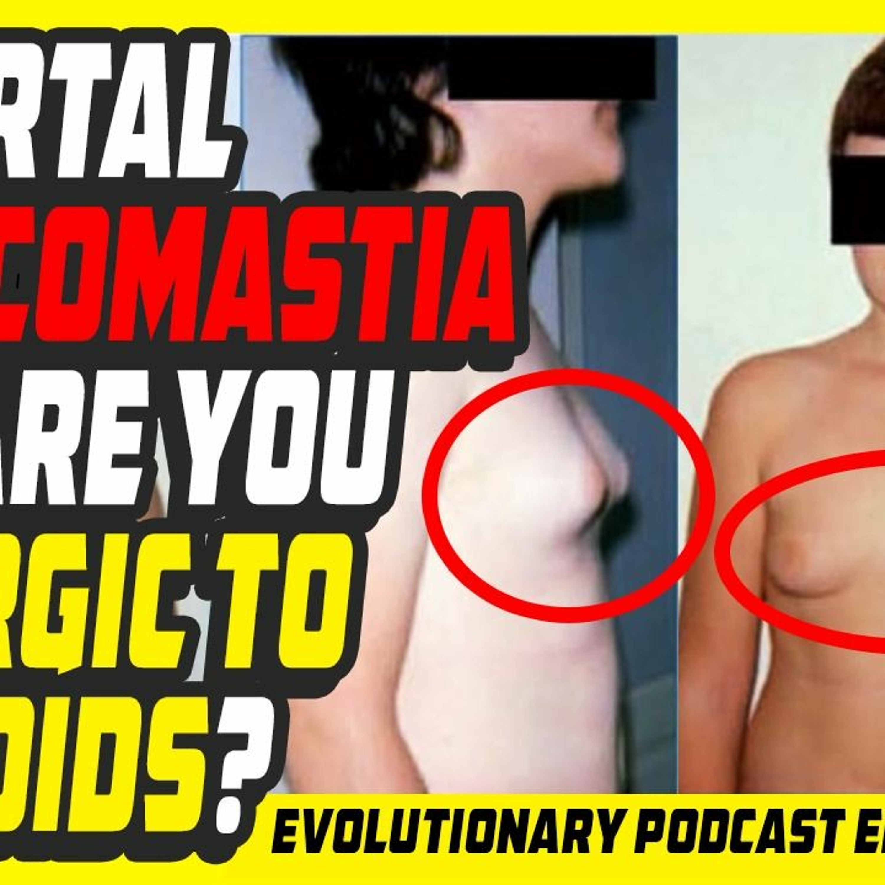 Evolutionary.org Podcast #407 - Pubertal gynecomastia and are you allergic to steroids?