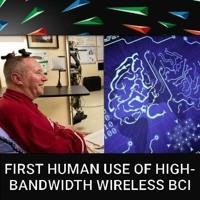 E202 - First Human Use of HIgh-Bandwidth Wireless BCI