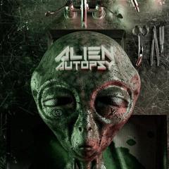 alien autopsy