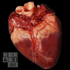 Phil Collins - Two Hearts (Steven Gerrard Aggro Edit)
