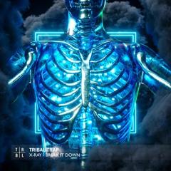 X-Ray - Break It Down