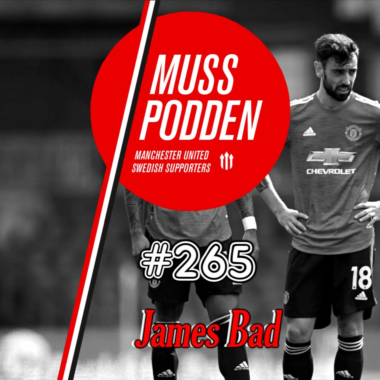 """#265 """"James Bad"""" (efter Leeds)"""