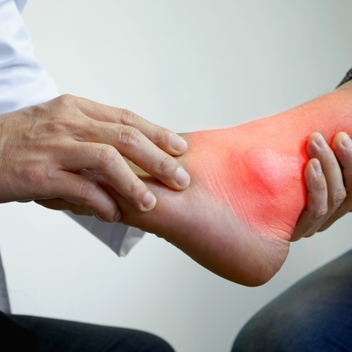 Tips and hacks on the diagnosis and management of gout in primary care