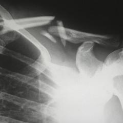 BoomBap Bones - The Fractured EP