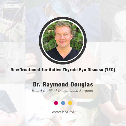 New Treatment for Active Thyroid Eye Disease (TED)