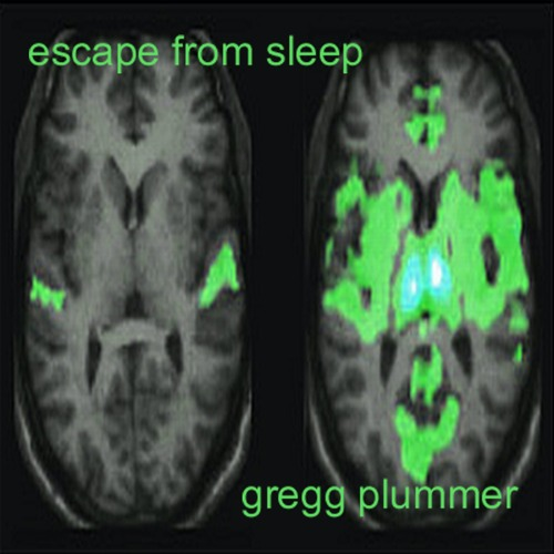 Escape From Sleep
