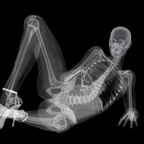 Фото половой акт рентген